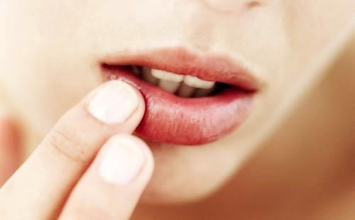 Герпес на губе при беременности как лечить