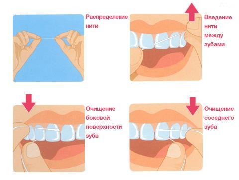 Алгоритм чистки зубной нитью