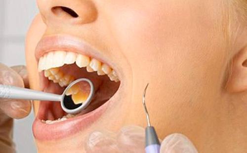 Отбеливание у стомотолога