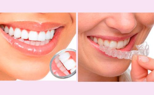 Сколько стоит отбеливание зубов в геленджике