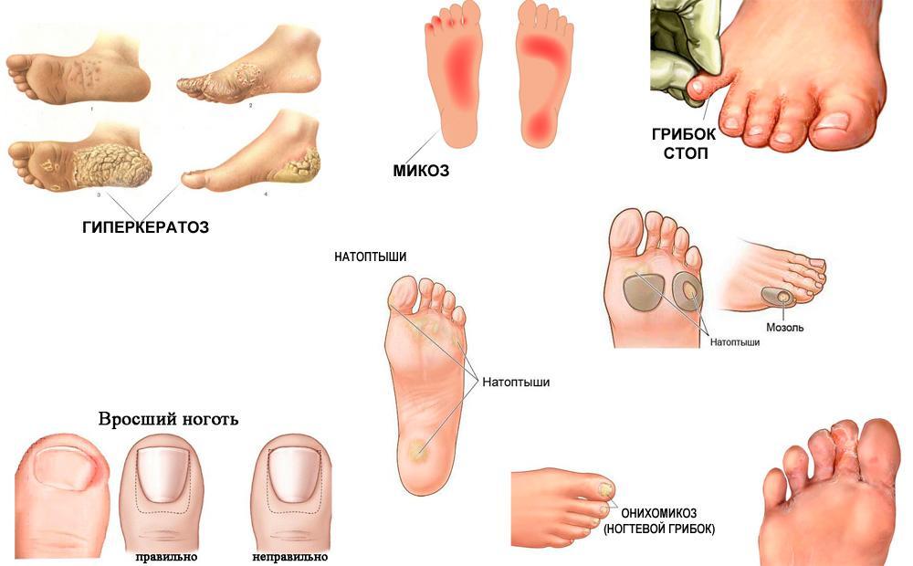 Какие симптомы грибка на ногах между пальцами