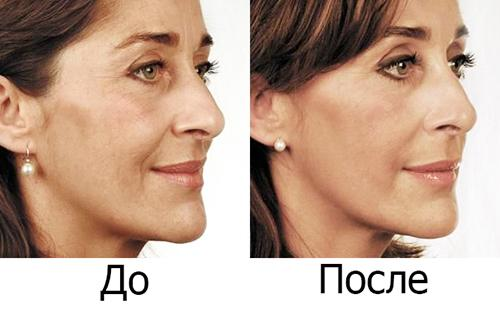 """Миловидная женщина стала ещё красивее после применения """"аптечного ботокса"""""""